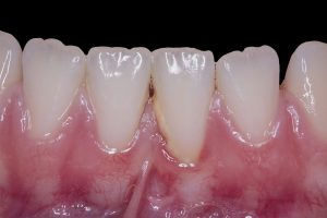 Photo demonstrating slight gingival recession associated with thin tissue, aberrant frenum attachment and tartar build up.