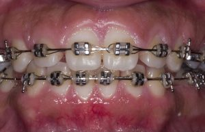 Lower teeth uncovered after crown lengthening